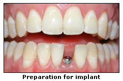 Preparation for implant