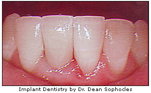 Implant dentistry by Dr. Dean Sophocles