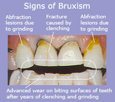 Signs of Bruxism