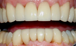 Restoration of front teeth using laminates - Dentistry by Dr. Dean Sophocles