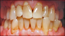 Before image of patient's teeth