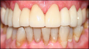 Restoration of upper teeth using laminates - Dentistry by Dr. Dean Sophocles