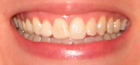 After Cosmetic Tooth Bleaching