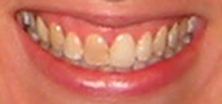 Before Cosmetic Tooth Bleaching